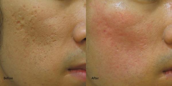 Acne-scar-laser-redondo-beach