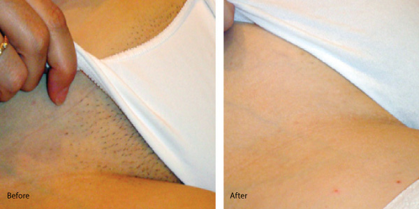 before and after bikini wax pics jpg 1152x768