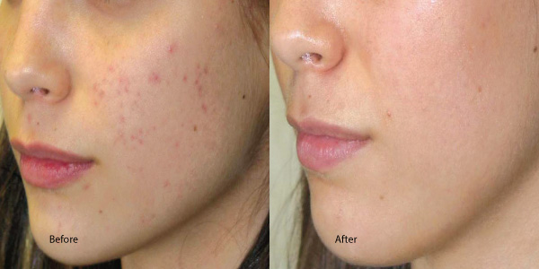 Chemical-Peel-Acne-Redondo-Beach