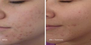 Chemical-peel-acne-hermosa-beach