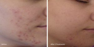 Chemical-peel-acne-palos-verdes