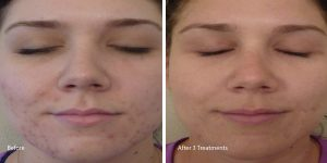 Chemical-peel-acne-torrance
