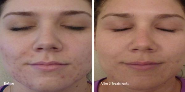 Chemical-peel-acne-torrance