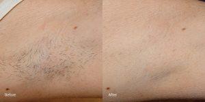Hair-removal-laser-hermosa-beach