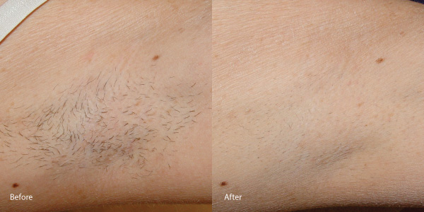 Hair-removal-laser-hermosa-beach