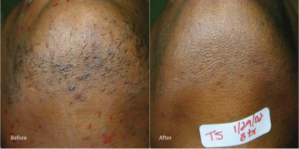 Hair-removal-laser-redondo-beach