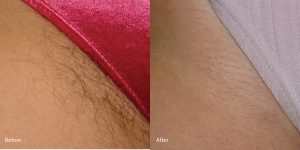 Hair-removal-laser-torrance