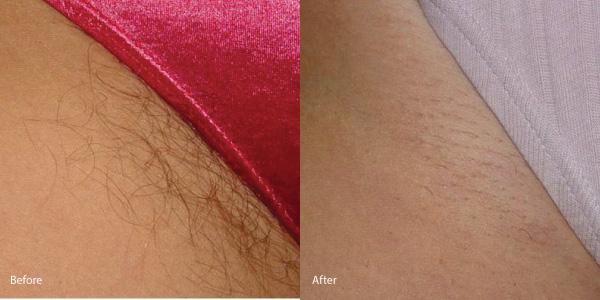 Hair-removal-laser-torrance