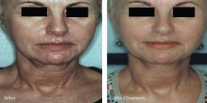 laser skin tightening palos verdes