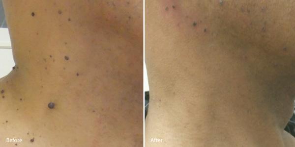 Skin-Tag-removal-Redondo-Beach