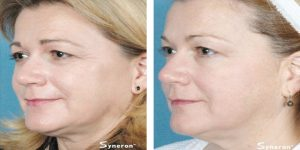 Laser skin-tightening-hermosa-beach