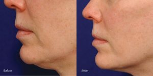 laser skin-tightening-redondo-beach