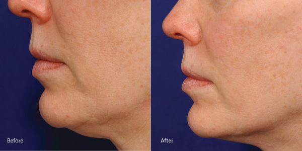 Skin-tightening-laser-redondo-beach