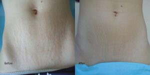 Stretch-Mark-Laser-Redondo-Beach