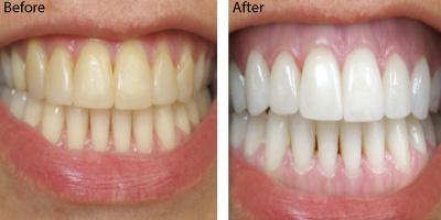 Teeth-whitening-hermosa-beach