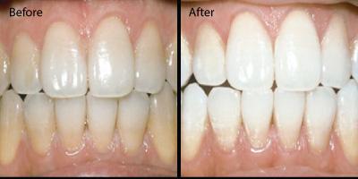 Teeth-whitening-redondo-beach