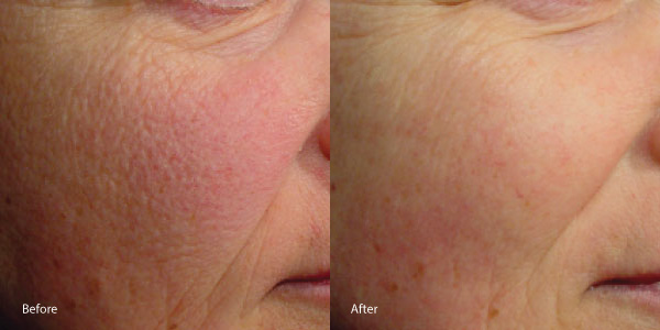 facial-redness-rosacea-laser-genesis-hermosa-beach