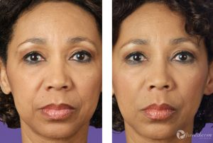 juvederm los angeles copy