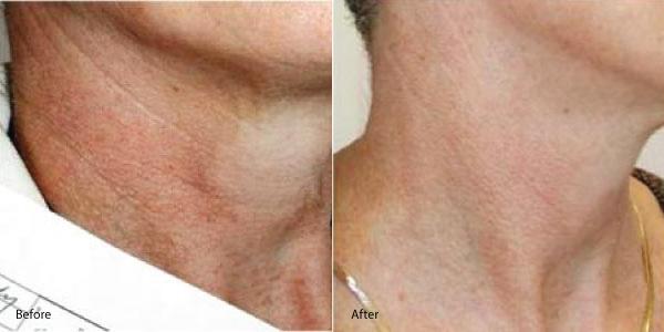 neck-redness-laser-genesis-palos-verdes