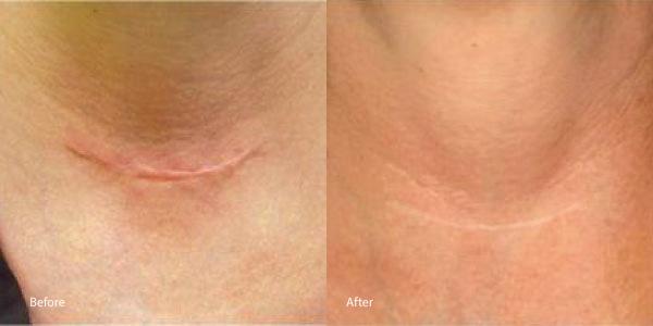 scar-laser-genesis-torrance