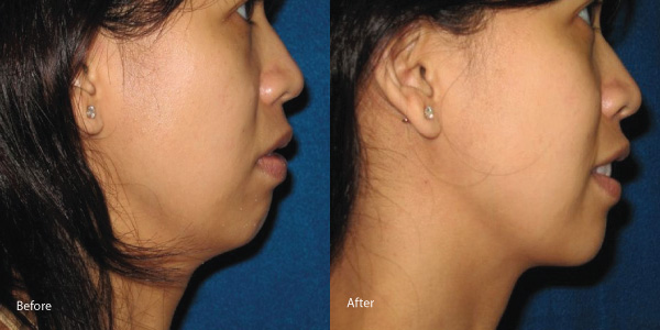 skin-tightening-laser-torrance