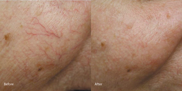 vein-removal-redondo-beach