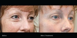 Exilis-eye-wrinkles-torrance