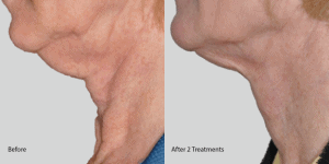 Exilis-neck-skin-tightening-palos-verdes