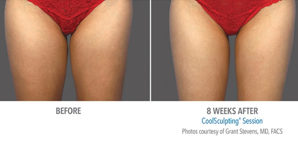 Coolsculpt-hermosa beach