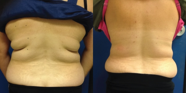 Coolsculpting-redondo-beach