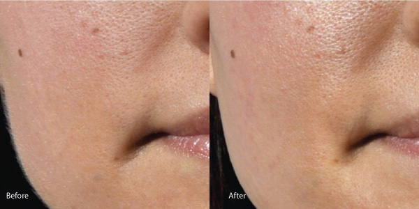 Dermaplaning Before & After Photos - The Laser Image Company