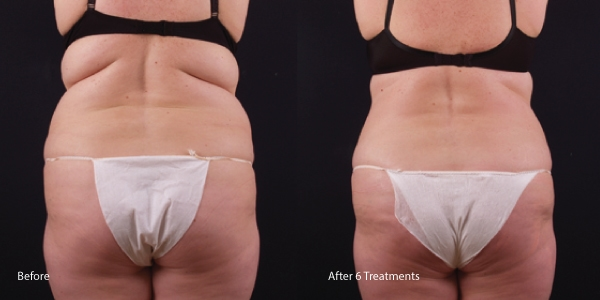 Exilis-fat-melting-torrance