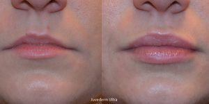 Juvederm-lips-Redondo-Beach