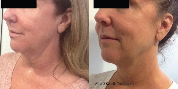 Kybella-Before-and-after 4