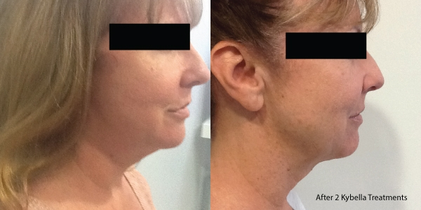 Kybella-Before-and-after-5
