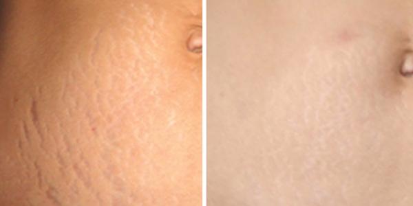MIcro-needle-stretch-marks-abdomen