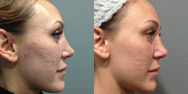 Microneedling Before & After Photos - The Laser Image Company