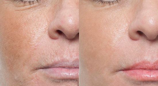 Microneedling Prp Hermosabeach The Laser Image Company