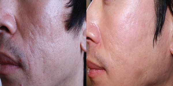 Microneedling-before-and-after-gallery acne scars