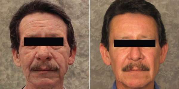 PRP-facelift-manhattan-beach
