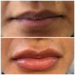 Lip injections Los Angeles