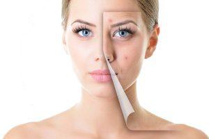 active-acne-concerns