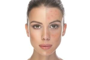 acne scars concerns