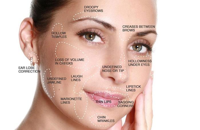 dermal-fillers-face-map