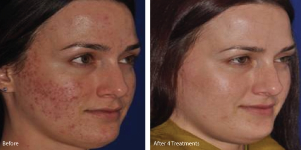 microneedling-acne-scars