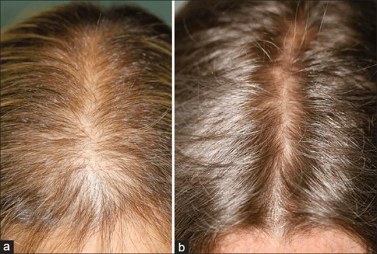 microneedling-hairloss1 copy