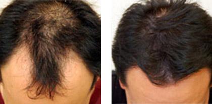 microneedling-hairloss2