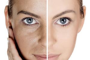 pore-size-concerns