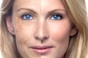 wrinkles-concerns